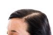 Głowa kobiety. Łysina
