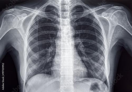 Fotografie, Obraz  Chest x-ray of an adult female human