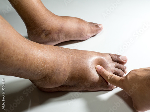 The feet of people with diabetes, dull and swollen Wallpaper Mural