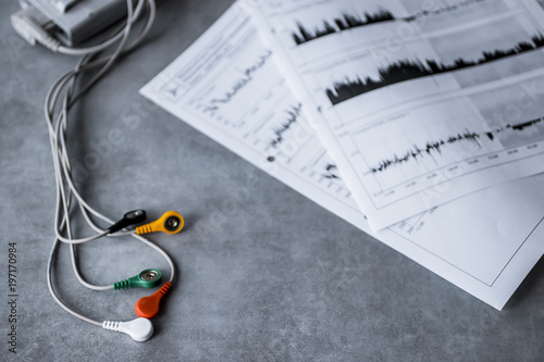 Holter monitoring device on gray background. Canvas Print