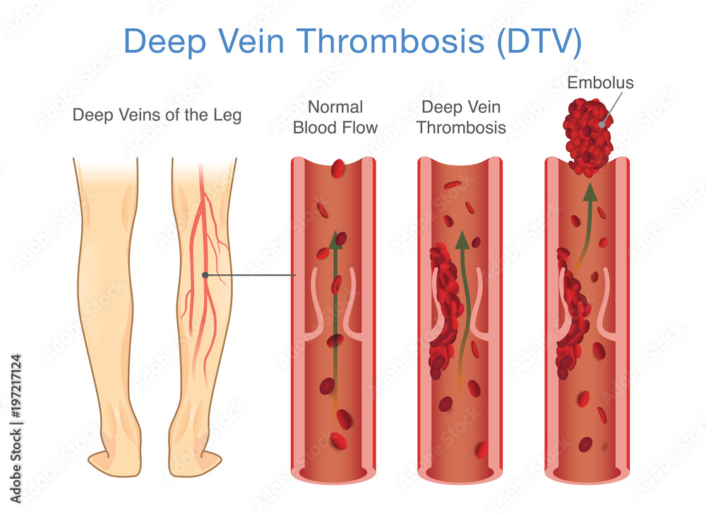 Medical Diagram Of Deep Vein Thrombosis At Leg Area Foto Poster
