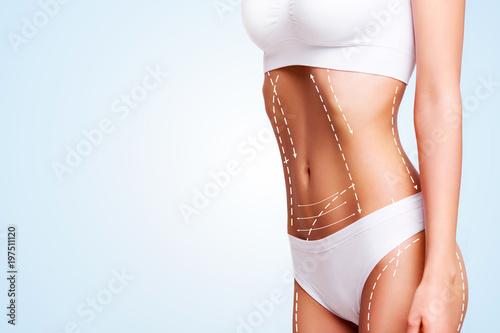 Obraz Female body cosmetic surgery and skin liposuction. - fototapety do salonu