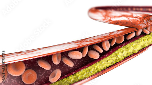 Cuadros en Lienzo Formazione di colesterolo, grasso, arteria, globuli rossi