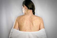 Treatment Chickenpox Viral Inf...