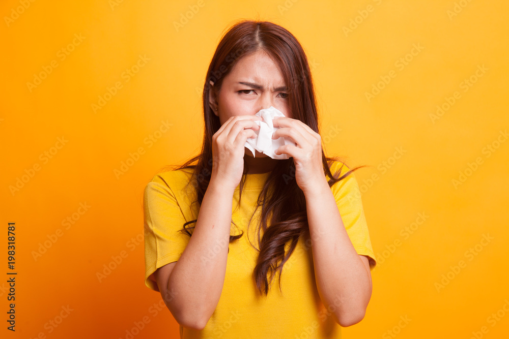 Fototapety, obrazy: Young Asian woman got sick and flu.