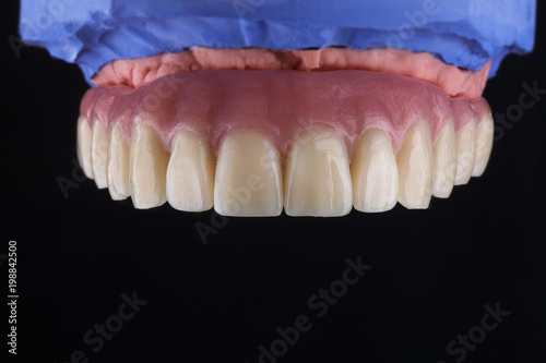 Fotomural high-quality dental prosthesis made of plastic, the upper part of the jaw on a b
