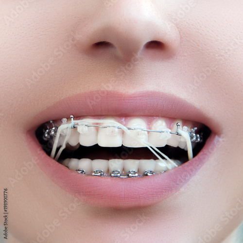 closeup dental brackets with rubber elastic band open female mouth with self ligating braces