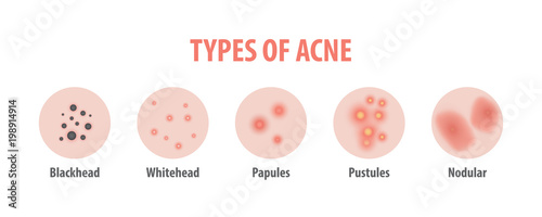 Photo Types of acne diagram illustration vector on white background, Beauty concept