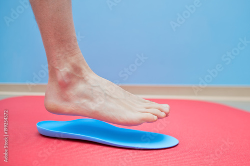Photo  Foot on orthopedic insoles medical foot correction