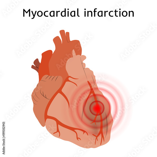 Myocardial Infarction Heart Attack Pain Damaged Heart Muscle