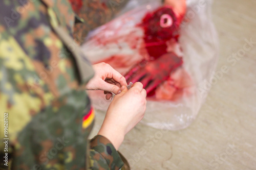 an amputated hand on a german soldier Canvas Print