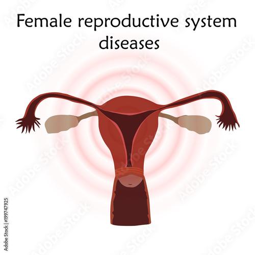 Female Reproductive System Diseases Uterus Womb Anatomy Flat