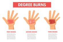 Degree Burns Of Skin. Infograp...