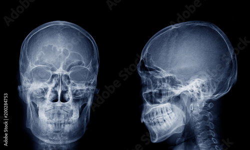 Fotografie, Obraz Very good quality X-ray image of normal human skull front (AP) view and side (Lateral) view, Process in blue tone isolated on black background