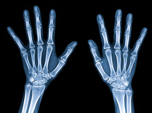 X-ray Image Of Normal Women Hands Isolated On Black Background With Clipping Path