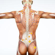 Vista Di Spalle Di Una Persona, Muscoli Della Schiena Con I Trigger Points Evidenziati. Anatomia E Corpo Umano