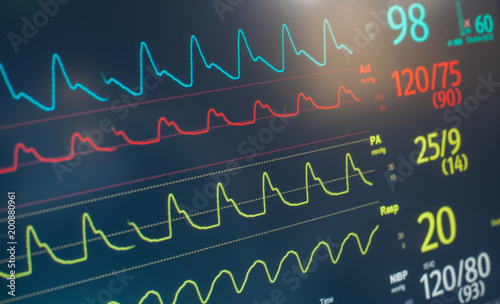 Monitor Heart Rate Beat Fototapet