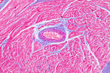 Histology Of Human Cardiac Mus...