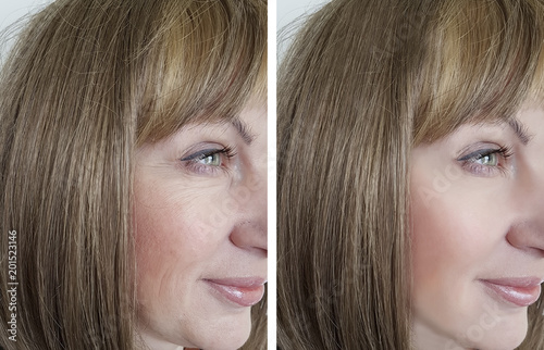 Fotografía  face woman wrinkles before and after procedures