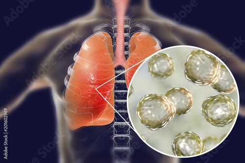 Blastomyces dermatitidis infection of lungs, conceptual image, 3D illustration Canvas Print