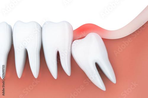 Fotografía  Toothache in wisdom tooth
