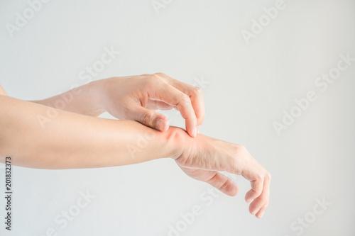 Foto Woman scratching her wrist.
