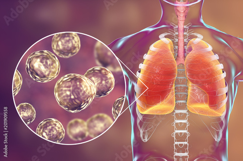 Blastomyces dermatitidis infection of lungs, conceptual image, 3D illustration Wallpaper Mural