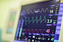 EKG Monitor In Intra Aortic Balloon Pump Machine In Icu On Blur Background, Brain Waves In Electroencephalogram, Heart Rate Wave