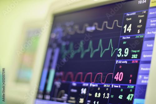 Fotografie, Tablou  EKG monitor in intra aortic balloon pump machine in icu on blur background, Brai