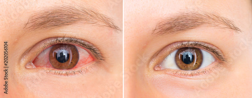 Red eye of woman before and after eyewash Canvas Print