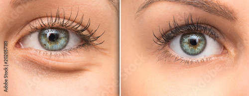 Fotografía  Woman eye bags before and after cosmetic treatment