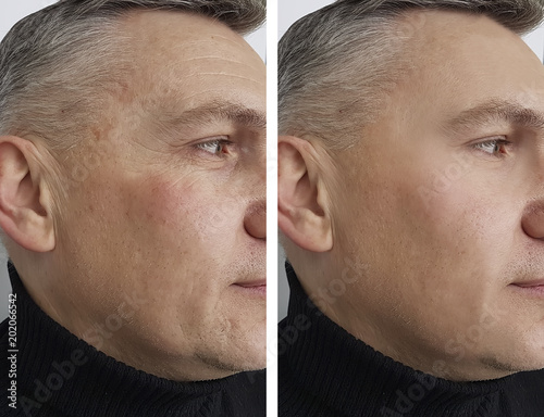 Photo face man man wrinkles before and after
