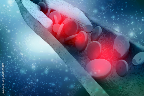 3d rendering blood cells with plaque buildup of cholesterol symbol of vascular i Canvas-taulu