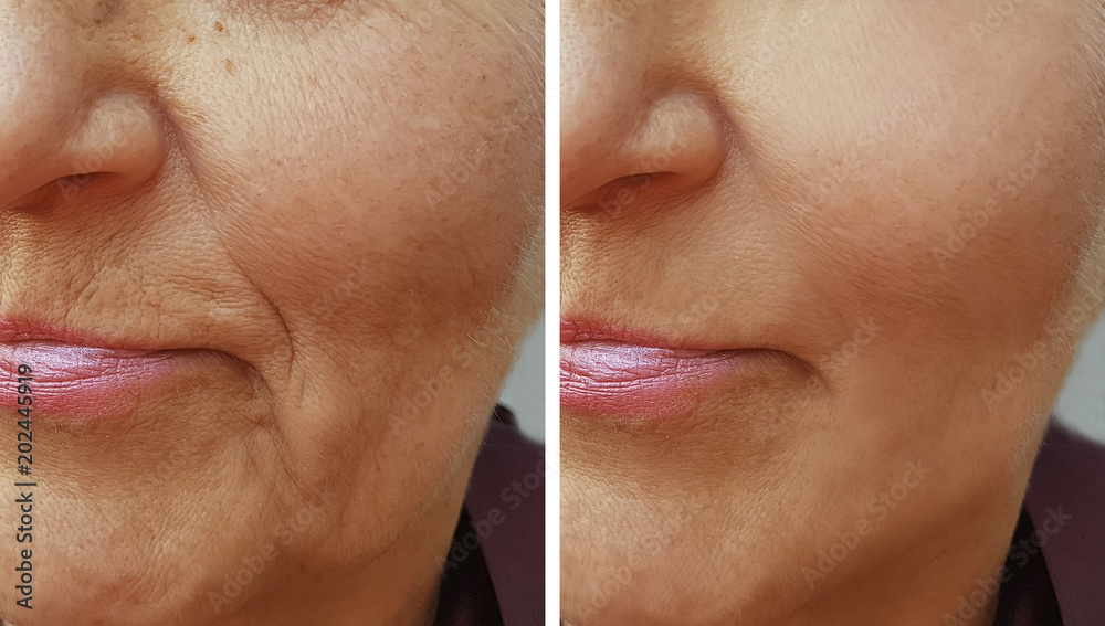 Fototapeta face of an old wrinkle woman before and after