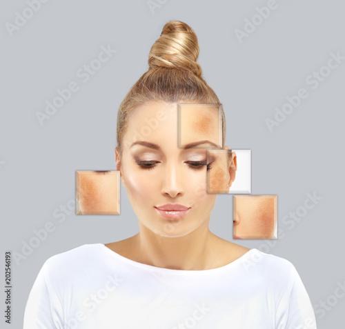 Fototapety, obrazy: Dark spots, freckles,hyperpigmentation(melasma or chloasma).