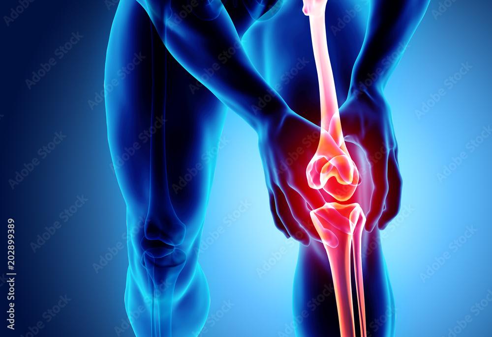 Fototapety, obrazy: Knee painful - skeleton x-ray.