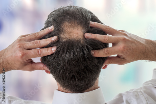 male showing head with circular thinning hair or alopecia Wallpaper Mural