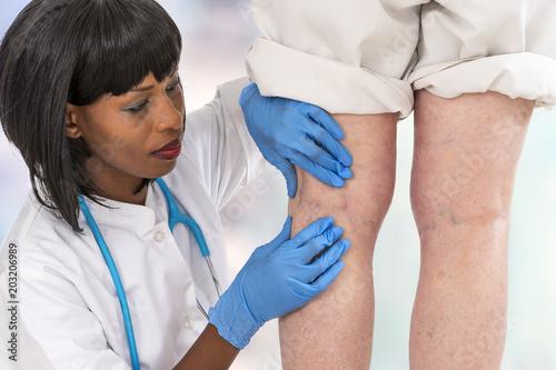 Fotografia  Lower limb vascular examination of a young woman