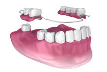 Removable Partial Denture. Med...