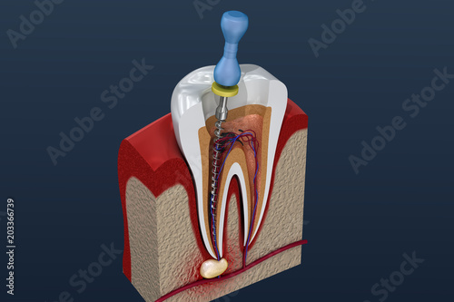 Fényképezés Root canal treatment process. 3D illustration