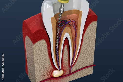 Root canal treatment process. 3D illustration Fotobehang