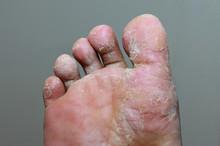 Athlete's Foot - Tinea Pedis, ...