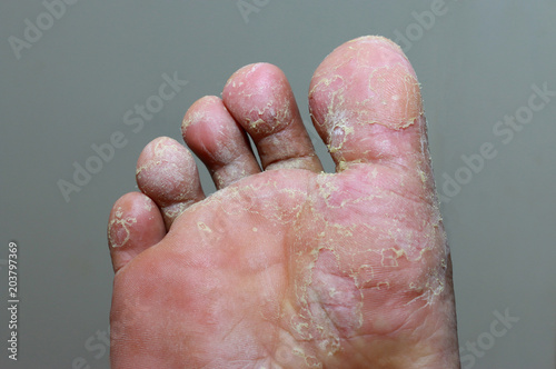 Obraz na plátně Athlete's foot - tinea pedis, fungal infection