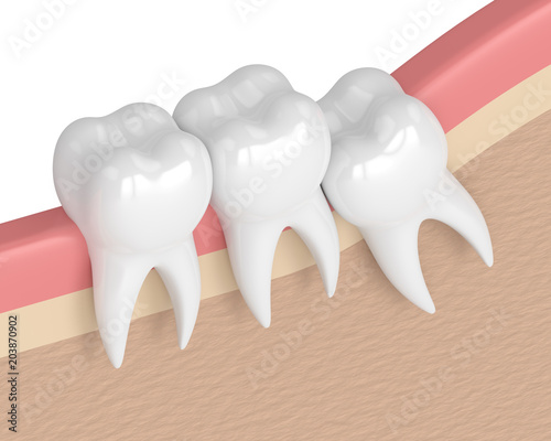 Foto 3d render of teeth with wisdom crowding