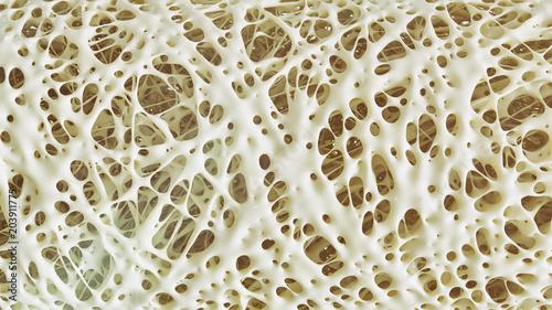 Fotografía Osteoporosis advanced -high details - Stage 4 - 3d rendering