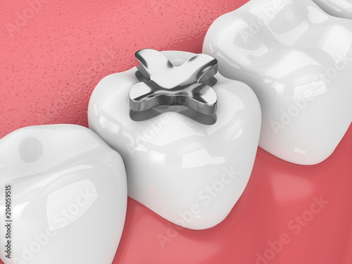 Valokuvatapetti 3d render of teeth with dental amalgam inlay filling