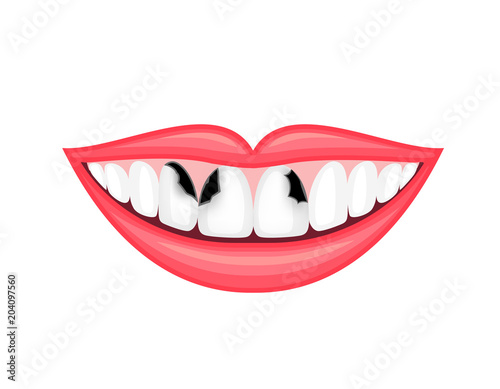 Tooth Decay Unhealthy Teeth Human Mouth Dental Care Concept