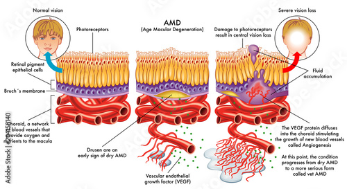 Fotografía  medical vector illustration of symptoms of AMD (age macular degeneration)