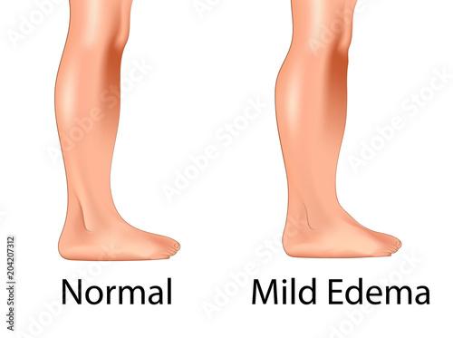 Obraz Mild edema with normal leg - fototapety do salonu