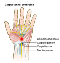 Carpal Tunnel Syndrome, Anatomy, Medical Illustration With Caption